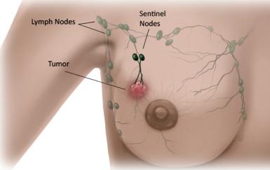 sentinel node biopsy.png